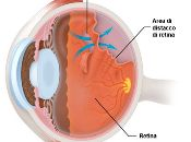 retina maculare diabete milano vista vision