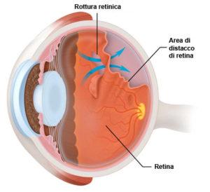 distacco_retina