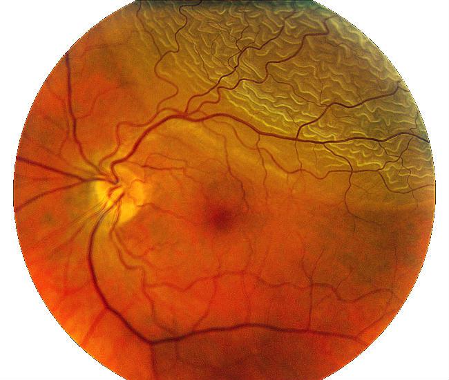 Distacco di retina nel settore superiore